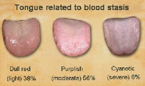 tongue blood stasis